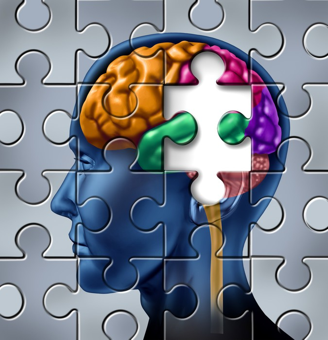 memory loss research paper Essay where has yesterday gone memory loss, like many do not realize precisely how the memory is destroye, research paper essay/term paper: alzheimer's.