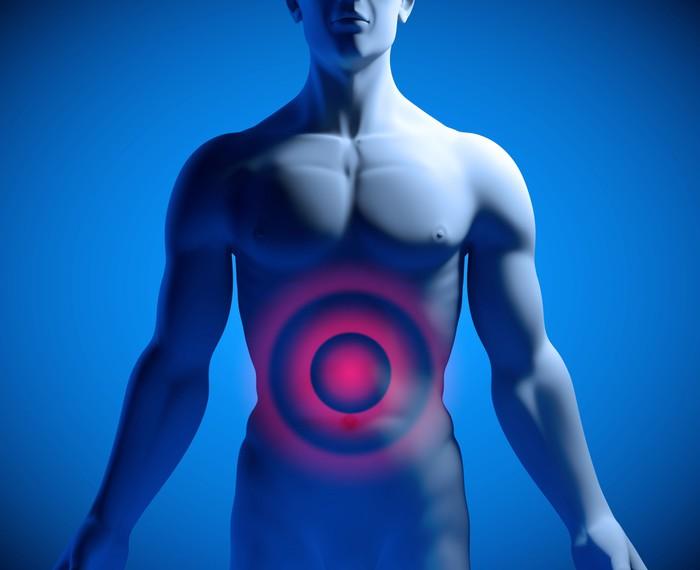 Fototapete Magenschmerzen und Bauchschmerzen • Pixers® - Wir leben ...