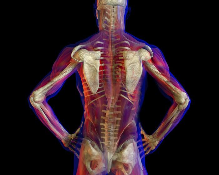 Fototapete X-ray Darstellung der menschlichen Anatomie und Skelett ...