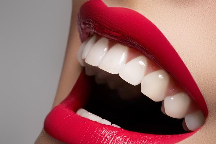 Canvastavla Närbild glad kvinna leende med friska vita tänder - Teman