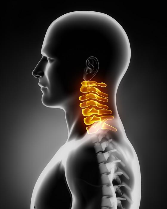 Fototapete Halswirbelsäule Anatomie Seitenansicht • Pixers® - Wir ...