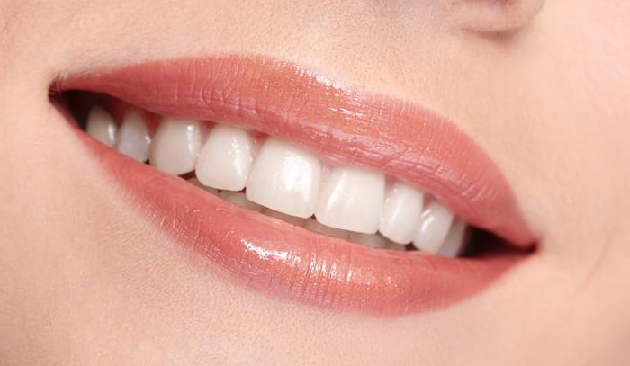 Vinylová Tapeta Žena s úsměvem zuby na bílém pozadí - Témata