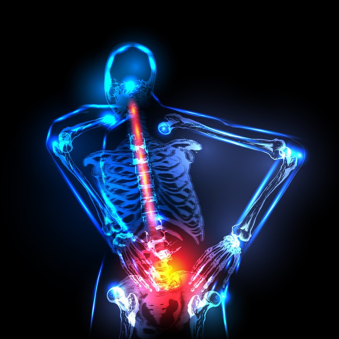 Vinilo Pixerstick Espina dorsal humana en vista de rayos x, dolor de ...