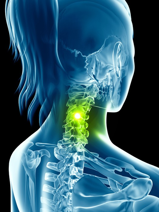 Vinilo Pixerstick Esqueleto femenino transparente - columna cervical ...