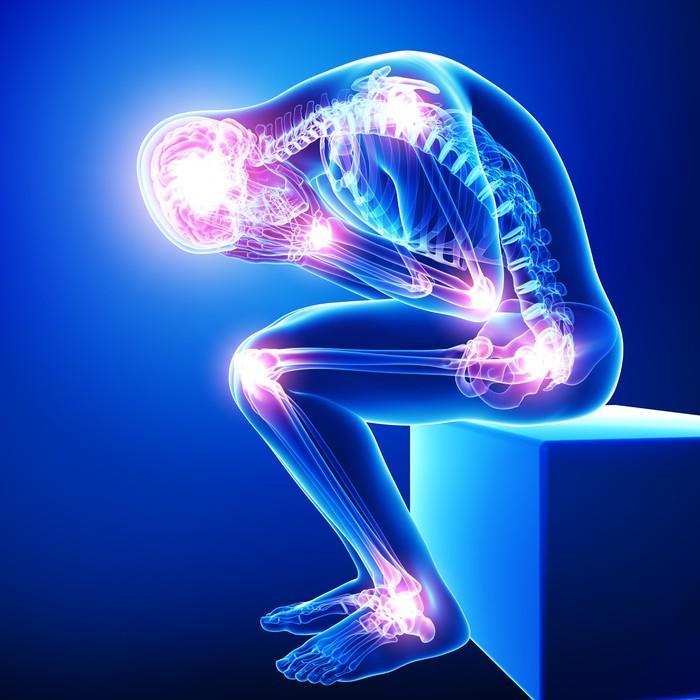 Fotomural Anatomía del dolor cerebro masculino con todas las ...