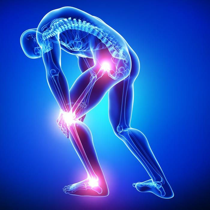 Vinilo Pixerstick Anatomía del dolor en las articulaciones macho en ...